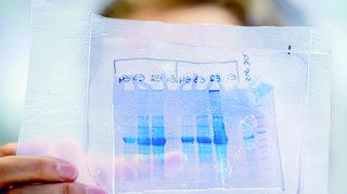 Coronavirus et vaccins: la conquête du marché a commencé