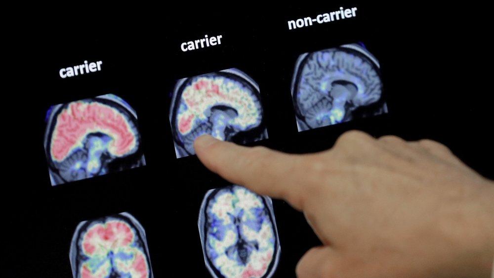 La recherhce sur l'Alzheimer progresse, mais suscite aussi des interrogations.