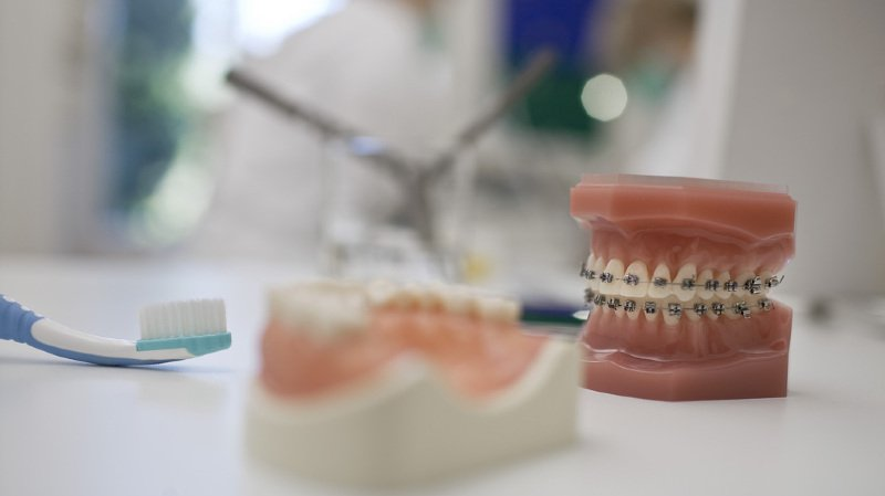Votations: les Vaudois ne veulent pas d'une assurance dentaire obligatoire