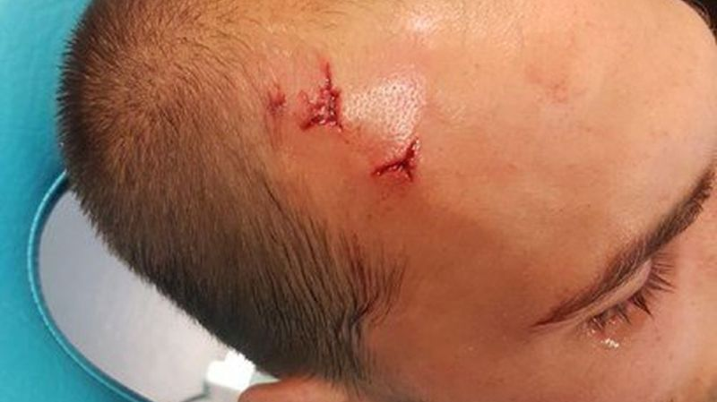 Le meilleur buteur du club, Bas Dost, a été blessé au crâne.