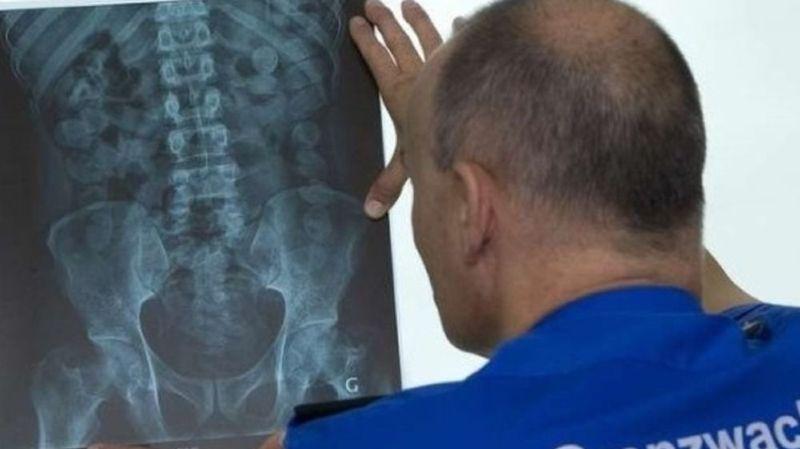 St-Gall: pincé avec 92 boulettes de cocaïne dans le corps à la frontière avec l'Allemagne
