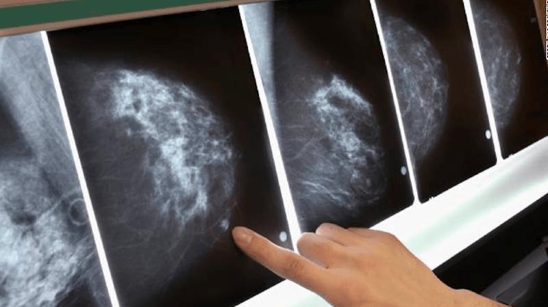 Jusqu'à 70% des femmes ayant eu un cancer du sein peuvent éviter la chimiothérapie.
