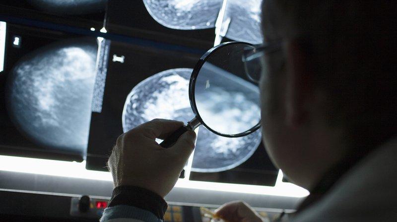Selon les membres du projet SBra, la mammographie est le moyen de dépistage le plus efficace et le plus reconnu scientifiquement, mais elle demeure onéreuse. (Illustration)
