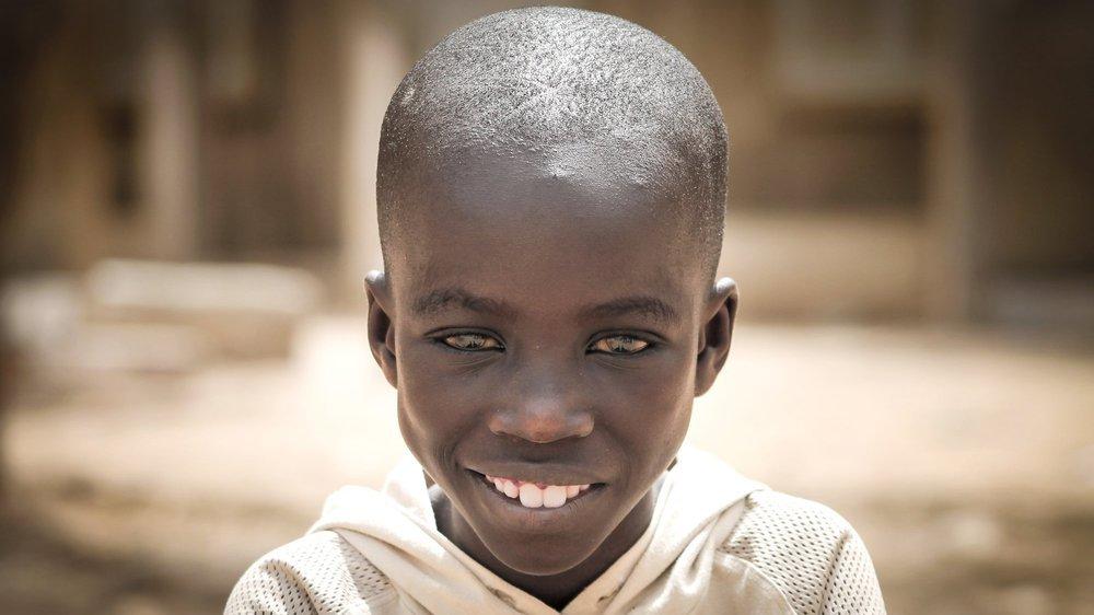Il y a un an, nous vous racontions l'histoire d'Adboulaye, ce petit garçon sénégalais sauvé par Terre des hommes.