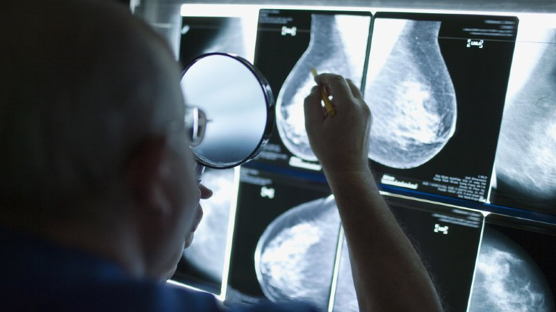 Santé: cancer du sein mieux diagnostiqué par l'intelligence artificielle