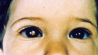 Un 1000e enfant traité du cancer de l'oeil à Lausanne