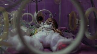 Japon: un bébé traité par cellules souches pour une maladie du foie