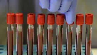 Coronavirus: en 10 chiffres, cette course au vaccin qui n'en finit pas